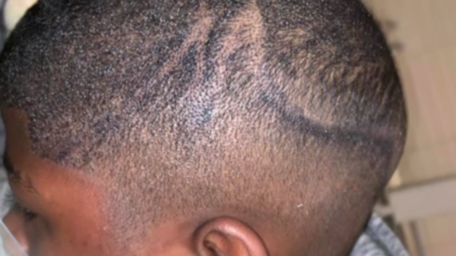 School administrators sued for using permanent marker on boy's head.