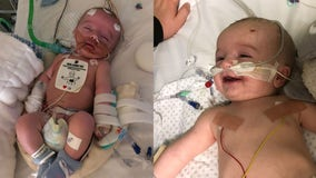 Baby defies doctors by waking up after 5-day coma, smiles at daddy