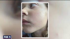 Girl stung by poisonous caterpillar