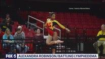 Former UMD gymnast battling rare incurable disease plans surgery to combat illness