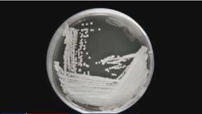 CDC: Untreatable 'superbug' outbreak discovered at DC nursing home