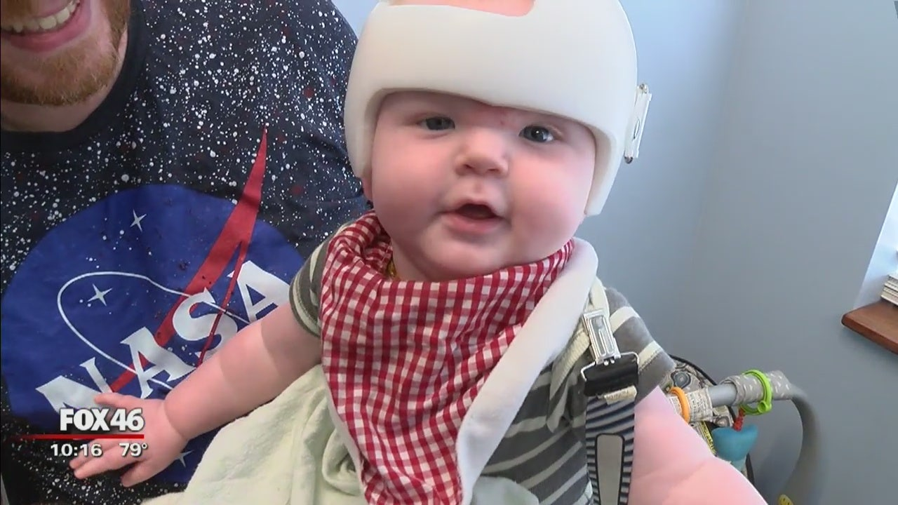 Investigation Insurance Companies Denying Cranial Helmets For