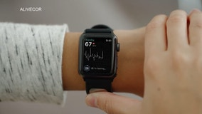 EKG on your wrist: Will wearable devices change healthcare?