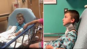8-year-old Texas boy suffers brain injury after attack by bullies