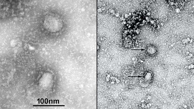 Electron microscope images of a coronavirus strain