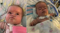 Prayers needed for Georgia baby with rare form of dwarfism