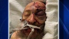 Family of Hanukkah attack victim speak out against bigotry