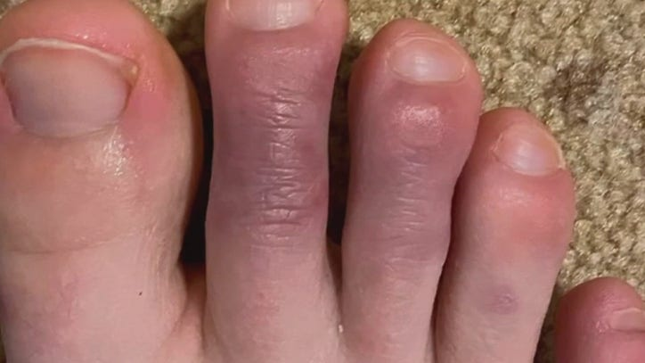'COVID toes' are emblematic of how much is still unknown ...