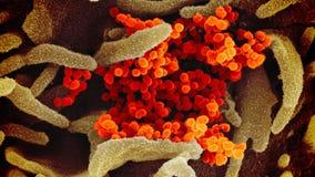 Groom dies of coronavirus, 100 others infected after wedding