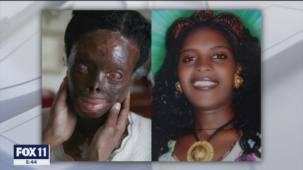 Acid attack survivor gets reconstructive surgery by Face Forward non-profit in Beverly Hills