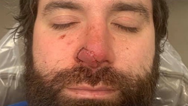 A photo from GoFundMe shows Bryan Thayer's nose.