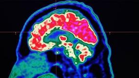 Short breaks may help brain learn new skills, NIH study says