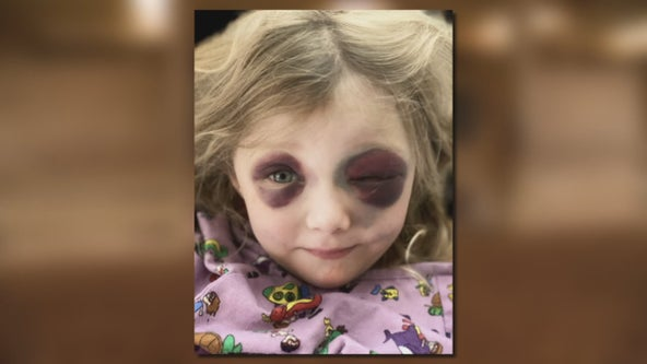 3-year-old girl survives freak accident at Parker equestrian center