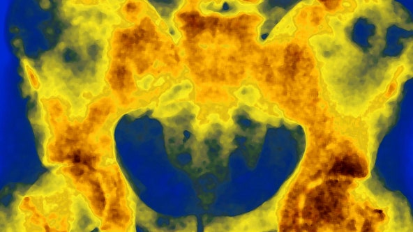 Radiation drug may improve survival rates for prostate cancer, study shows