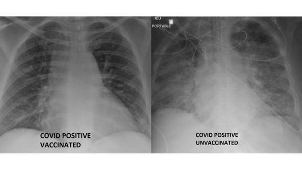 COVID-19 lung X-rays show difference between vaccinated, unvaccinated patients