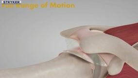 New device offers alternative to rotator cuff surgery