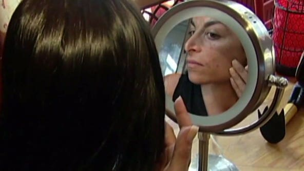 Dermatologist weighs in on mask-related acne: 'It's not a reason not to wear a mask'