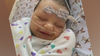 'She's a fighter:' Family seeks live liver donor for their baby girl