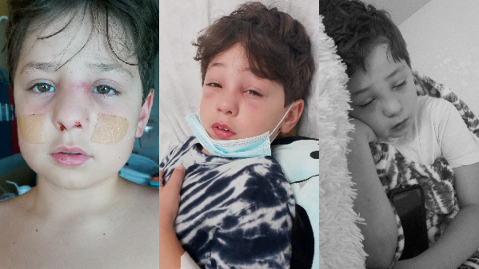 ad244727-Emmett was diagnosed with COVID-19 and it quickly became an infection in his sinus cavity. Photos by Corina Lee