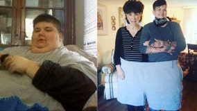 Woman drops 500 pounds after losing tongue to cancer: 'I'm alive for the very first time in my life'