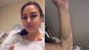Woman says birth control pills led to 'massive' blood clots that nearly killed her: 'I'm lucky to be alive'