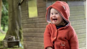 Girl, 2, with Down syndrome stars in fashion campaign