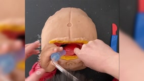 Doctor teaches 4-year-old son how to perform surgeries using play dough