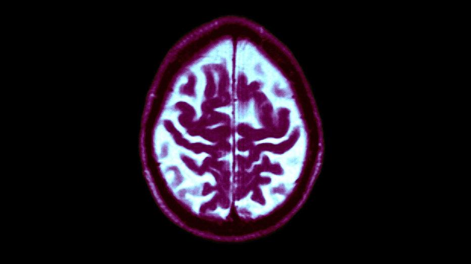 Brain Alzheimer's1