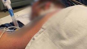Arkansas hospital shows grim picture inside its COVID-19 ICU