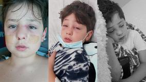 Casa Grande little boy battles serious sinus cavity infection after COVID-19 diagnosis