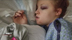 Sledding accident injures Minnesota woman