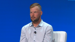 Man with facial transplant speaking out about his depression to help others