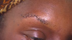 Mother, coach says she was attacked at 10-year-old son's football game