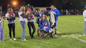 St. Croix Falls, Wis. teen who had legs amputated after fiery crash crowned homecoming queen