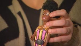 Barbies with vitiligo donated to Minnesota Vit Friends support group