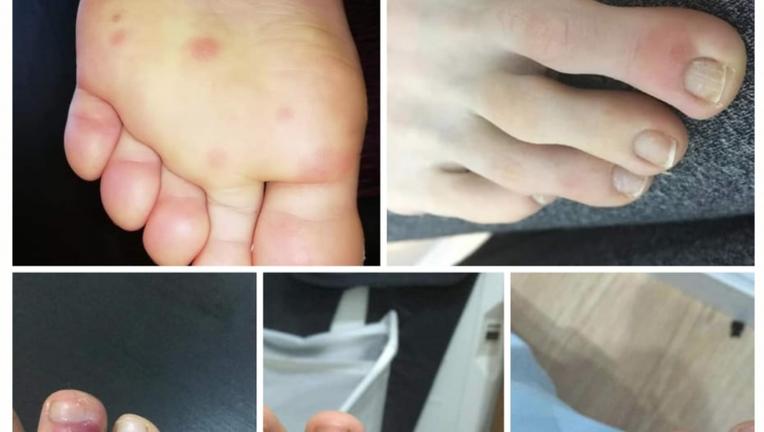 coronavirus symptoms feet sores
