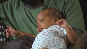 St. Paul family welcomes healthy baby boy after successful in utero surgery