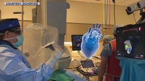 St. Cloud Hospital first to use 4D hologram technology during heart procedure