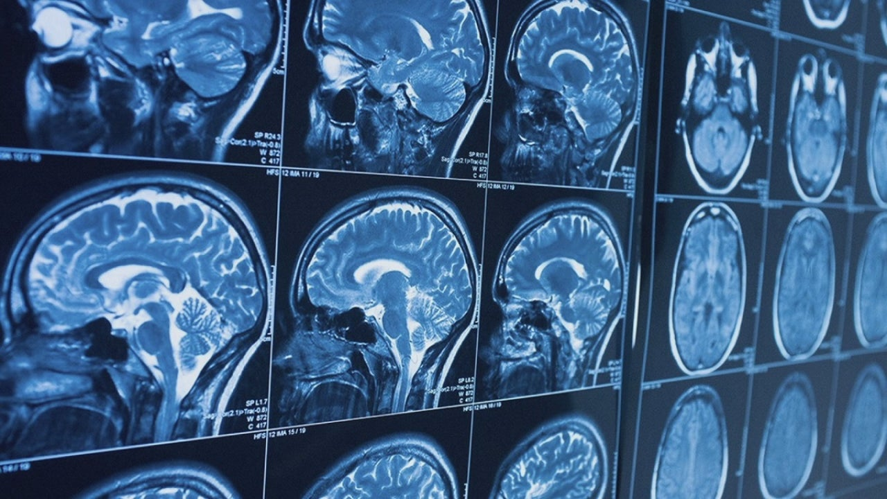 New study finds COVID-19 can cause changes in brain that mimic Alzheimer's disease