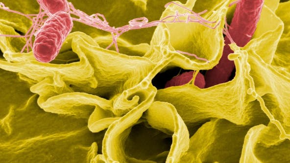 Salmonella: CDC investigating outbreak linked to unknown food source