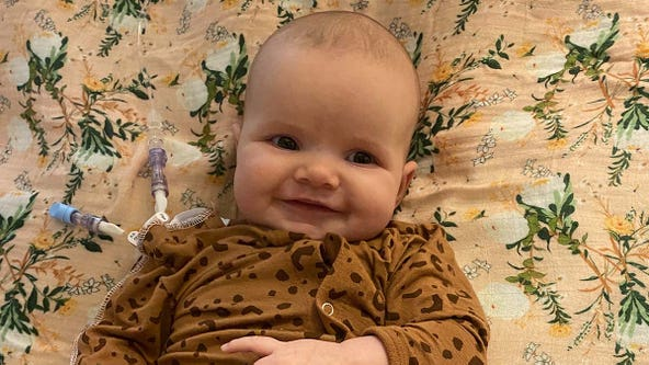 Minnetrista infant is the youngest Minnesotan waiting for heart transplant
