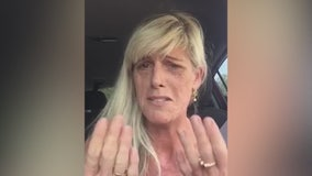 Woman who has Lupus denied manicure