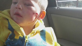 3-year-old boy attacked by pit bull