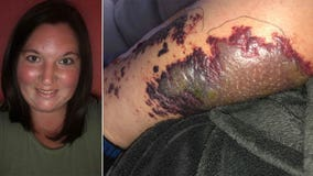 Woman nearly loses her leg to bacterial infection she says she contracted from hotel hot tub
