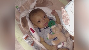 Whittier baby in dire need of new liver