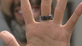 The Oura Ring: What is its appeal and does it really work?