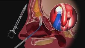 Innovative sinus balloon helps adults suffering from chronic sinusitis