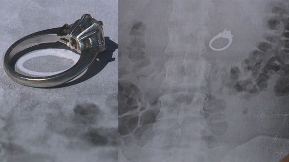 Woman has nightmare about swallowing engagement ring, then wakes to find out it really happened