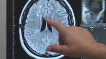 Health experts reveal stroke symptoms to look out for as young patients are on the rise