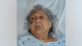 Health officials seek help identifying South Bay patient